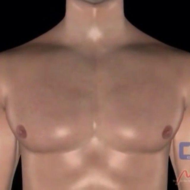 DERRAME PLEURAL - A pleura é uma membrana delicada que recobre o pulmão pelo lado de fora (pleura visceral) e a superfície interna da parede torácica (pleura parietal). Entre as duas pleuras, existe uma camada muito fina de líquido, que facilita o deslizamento suave dos pulmões dentro da caixa torácica, quando se enchem e esvaziam de ar. O derrame pleural, ou água na pleura, é caracterizado pelo acúmulo excessivo de líquido no espaço entre a pleura visceral e a pleura parietal. De acordo…