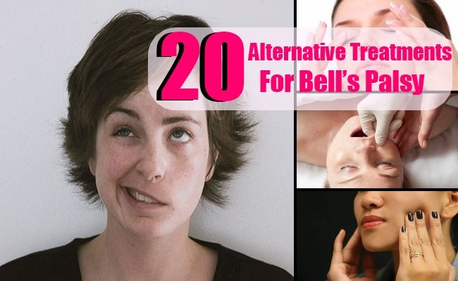 20 Alternative Treatments For Bell's Palsy – Health and Wellness