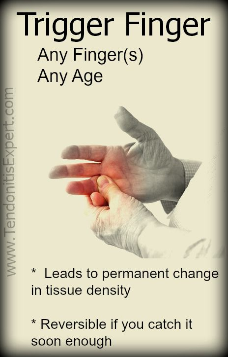 Trigger Finger can affect anybody, any finger (and any number of fingers, at any age. It is not a disease, it is a predictable result of various lifestyle factors like how we use our hands, our nutritional status, etc. http://www.TendonitisExpert.com/Trigger-Finger.html