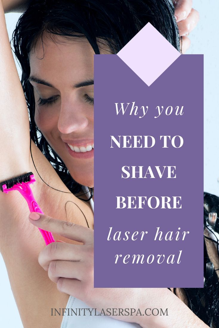 Why You Need To Shave Before Laser Hair Removal Infinity Laser Spa In 2020 Laser Hair Removal Hair Removal Laser Hair