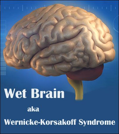 """Wernicke Korsakoff's syndrome, also known as """"Wet Brain"""" is a serious neurological disorder caused by a severe lack of Vitamin B1 (thiamine) in the brain."""