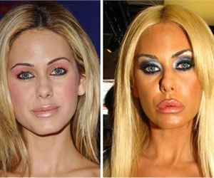 Awful Plastic Surgery