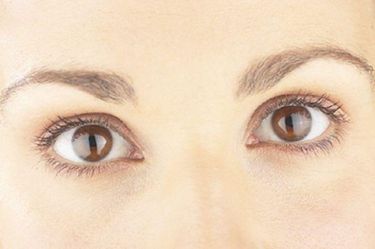 Hypothyroidism Treatment After RAI Helps Prevent Eye Problems