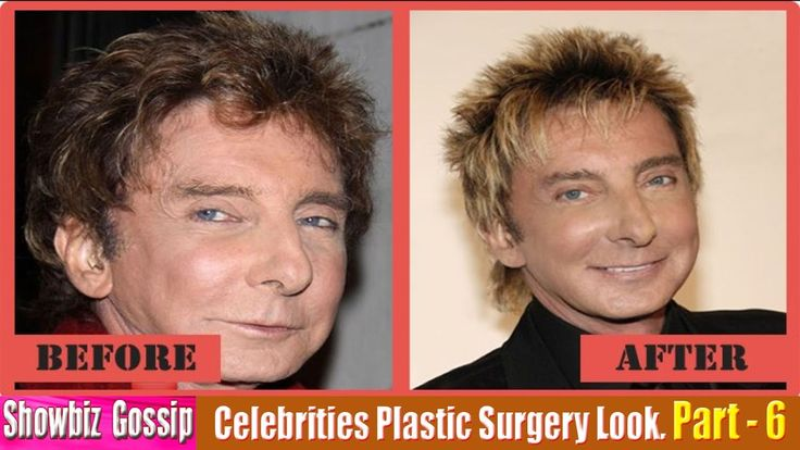 101 Celebrities Plastic Surgery Before and After Look. (51-60) | Part - 6.