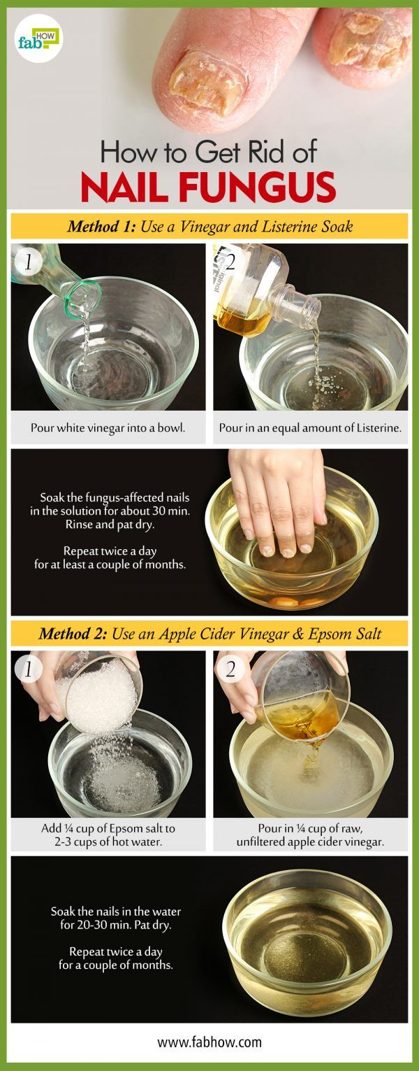 How to Get Rid of Toenail Fungus and Destroy the Infection with This Listerine and Vinegar Remedy