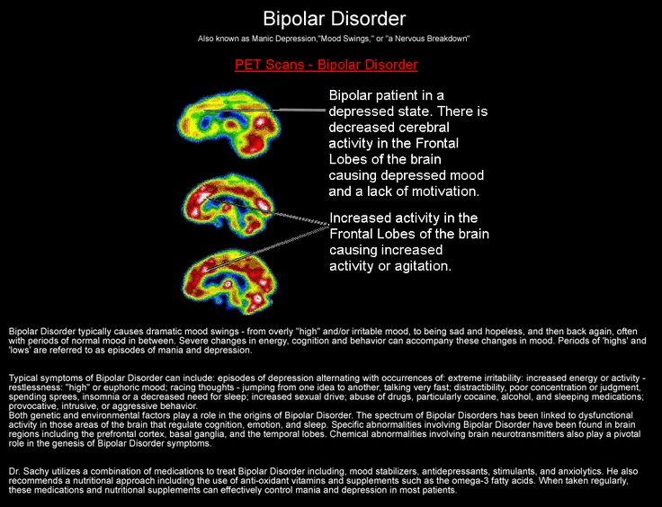 279 best Bipolar/BPD, images on Pinterest   Funny stuff ...