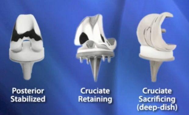 Types of Total Knee Implants