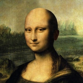 Even with Alopecia Universalis, Mona is still gorgeous.