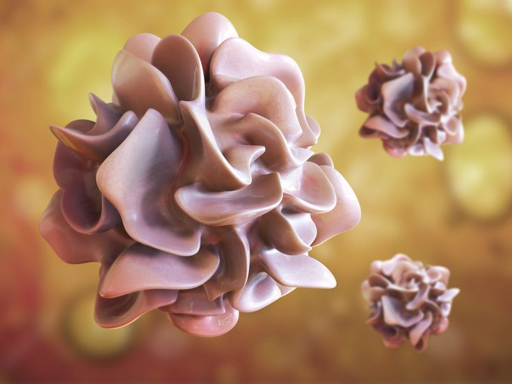 Dendritic Cell Cancer Vaccine in the Pipeline