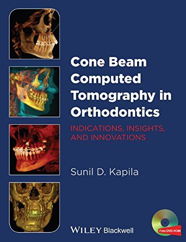 Cone Beam Computed Tomography in Orthodontics PDF - http://am-medicine.com/2016/01/cone-beam-computed-tomography-orthodontics-pdf.html