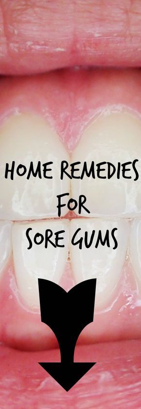 Home remedies for sore gums. See your dentist and try these home remedies: When people don't practice proper dental hygiene, bacteria in the mouth forms plaque on the teeth. These bacteria may cause your gums to become inflamed, which results in red, swollen, or bleeding gums. Brush and floss regularly. If the root cause of …