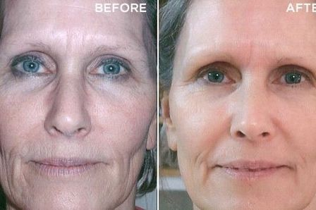 Amazing results from our Recover mask!  Create your regimen today and start seeing your own results. Ask me how.  lorrinda_71@hotmail.com