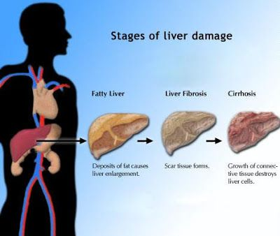 Determine what status the Enlarged Liver And Heart symptom may be a symptom, and find out another conditions have the same signs and symptoms.