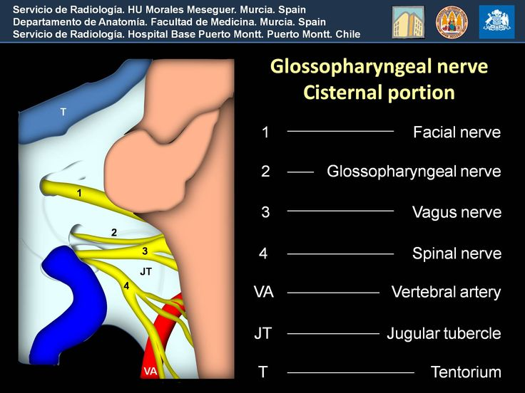 ECR 2013 / C-1419 / Do we know where to look at the glossopharyngeal nerve? Gross anatomy, cross-sectional imaging references and pathology - EPOS™