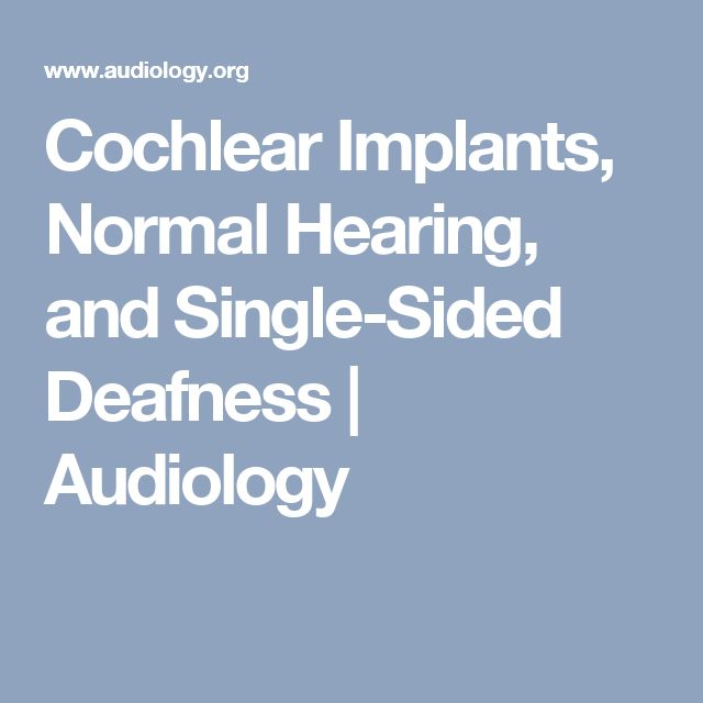 Cochlear Implants, Normal Hearing, and Single-Sided Deafness | Audiology