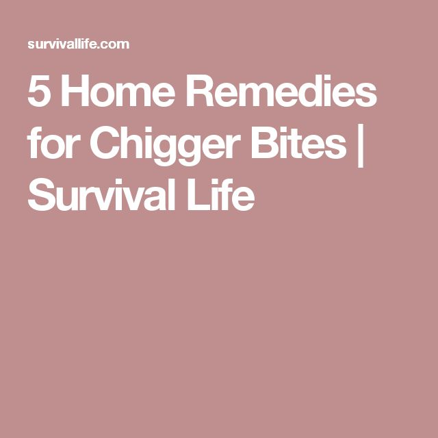 5 Home Remedies for Chigger Bites | Survival Life