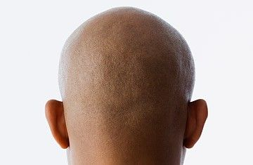 Study Finds Pattern in Male Baldness: Could There Be a Cure?  A boon for balding pates: scientists have pinpointed a protein that may trigger hair loss, and it could be a target for a cure. Has the world finally found an answer to man's hairiest question? Shall great tufts again sweep across the foreheads whence they retreated years ago?