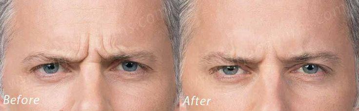 https://flic.kr/p/21N992M | Botox Cosmetic | Botox Cosmetic Dr. John L. Burns, Jr., MD Board Certified Plastic Surgeon President Dallas Plastic Surgery Institute
