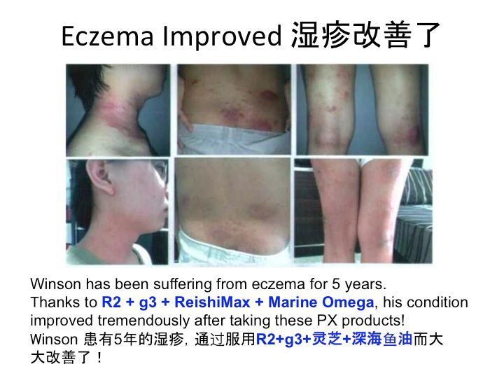 Eczema condition for 5 years improved after taking Pharmanex's R2, Marine Omega, ReishiMax & g3.