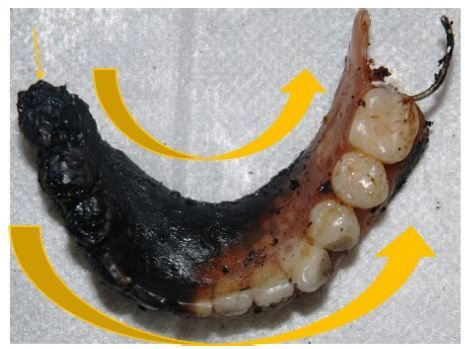 Figure 5 Lower denture where the direction of the fire was from the right to the left side (large arrows), on the lingual and vestibular surfaces.