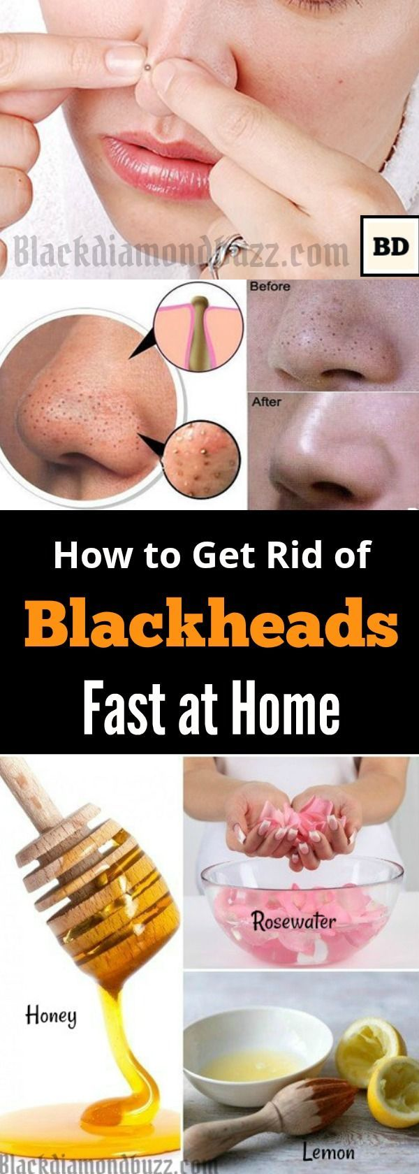 Remove blackheads with flour and honey maskJUST ADD  TSP OF