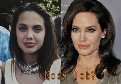 Angelina Jolie Plastic Surgery Nose Job #angelinajolie #celebritysurgery #nosejob