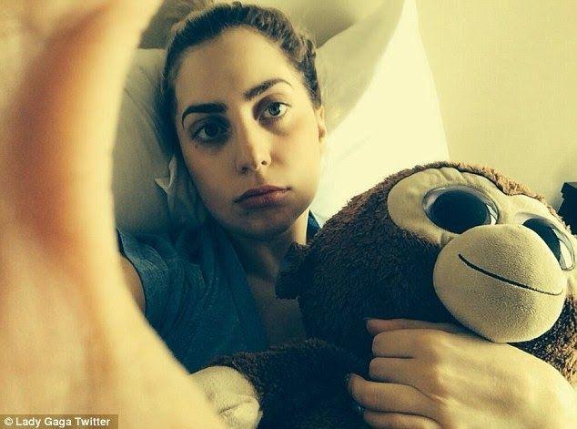 Chatter Busy: Lady Gaga Wisdom Teeth Removed