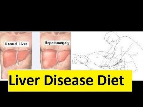 Liver Disease Diet - How To Cure Fatty Liver with Diet - YouTube