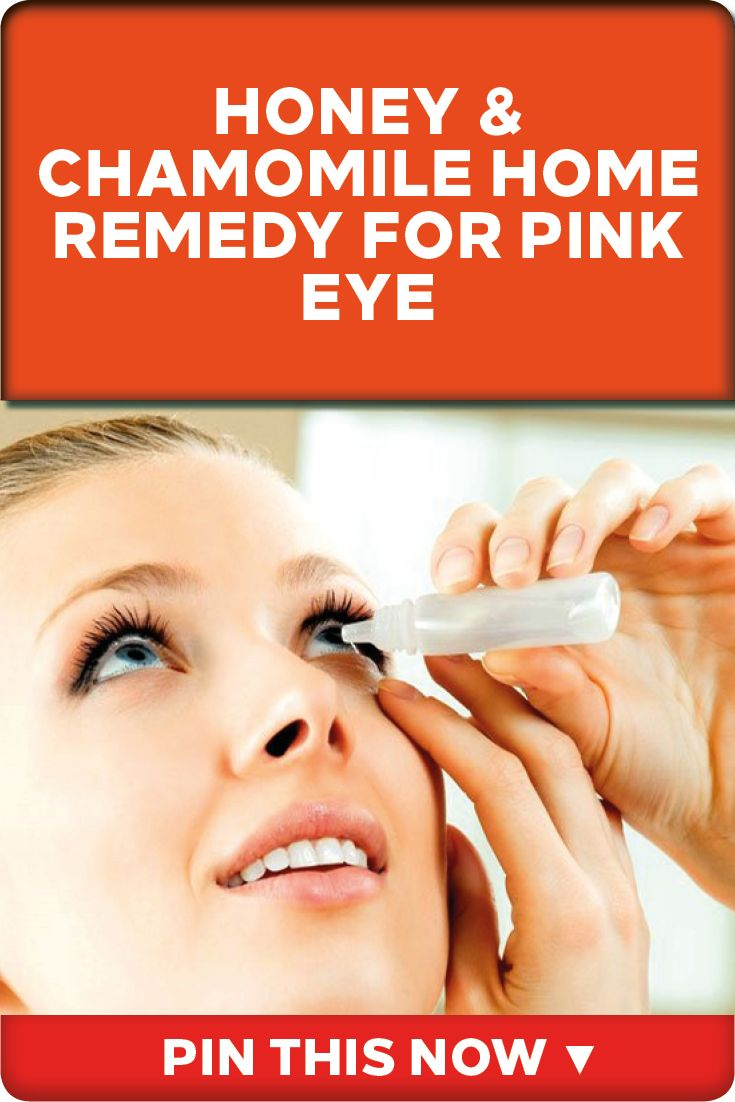 Honey  Chamomile Home Remedy For Pink Eye  Pink Eyes -1997