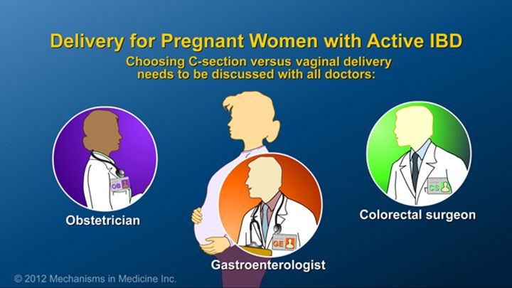 Pregnant women with IBD should discuss the ideal mode of delivery, C-Section versus vaginal delivery, with all of their doctors, including their obstetrician, gastroenterologist and their colorectal surgeon if they had surgeryslide show: optimizing pregnancy outcomes with ibd. this slideshow describes issues females with ibd should consider before getting pregnant. the fertility of patients with ibd and healthy people is compared, and the ways in which ibd may affect a pregnancy are…