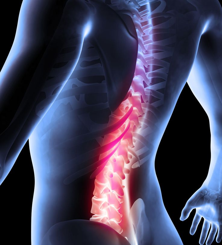 29 best Back Matters images on Pinterest | Chronic pain, Health ...