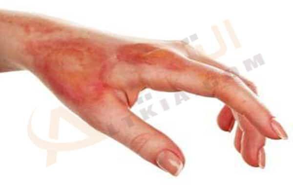 تفسير حلم رؤية الحرق في المنام Home Remedies For Burns Burn Remedy Burns Treatment