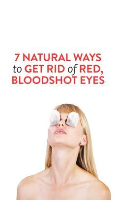 how to get rid of bloodshot eyes #beauty #tips
