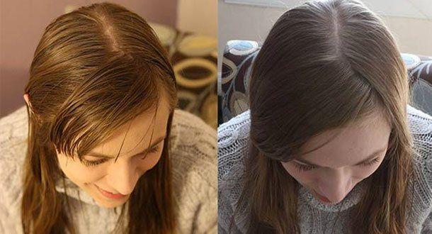 elle-na-pas-utilise-de-shampoing-pendant-6-mois-le-resultat-est-incroyable