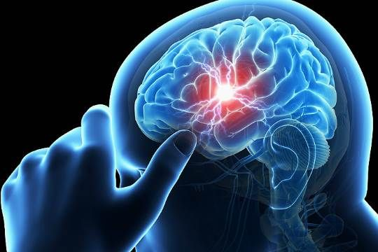 Experimental therapy could boost stroke recovery