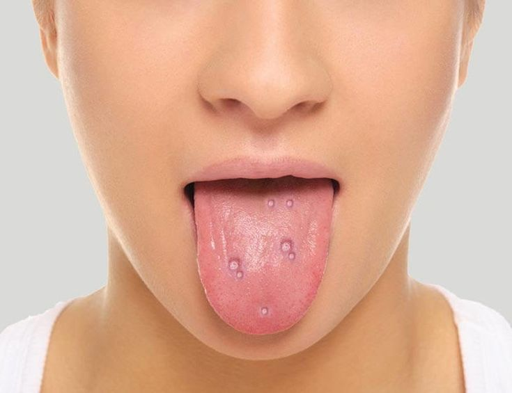 Blisters on tongue home remedies/Home remedies for canker sores http://trendydamsels.com/blisters-on-tongue/  #home remedies #natural treatment #blisters #canker sores #healthy #health #healthy diet #healthy food #food #foodie