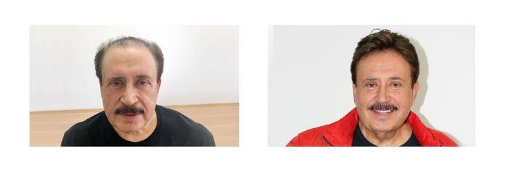 Ünlü sinema oyuncusu ve sanatçı GÖKHAN GÜNEY'in tercihi de Hairhotel oldu. www.hairhotel.com.tr 0212 213 88 89