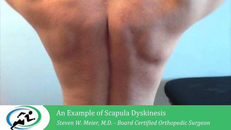 We strive to offer the most sophisticated orthopaedic treatment in Los Angeles. Dr. Meier has extensive experience in arthroscopic procedures, arthroplasty.http://www.mosm.com/arthroscopic-shoulder-surgery