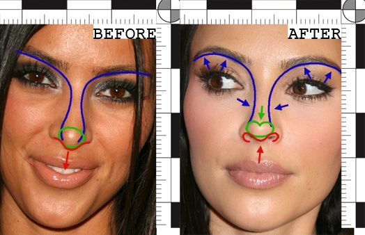 Kim Kardashian's Nose Job: a Forensic Analysis