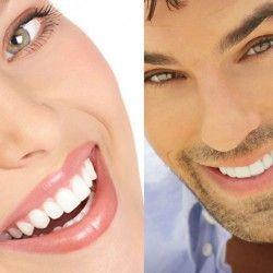 Para unos dientes perfectos: blanqueamiento dental casero