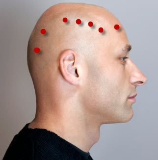 Top 6 Acupressure Points for Treating Neck and Shoulder Pain By Bipasha Mukherjee