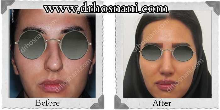 Open rhinoplasty was performed to narrow the bulbous nasal tip and correct the crooked appearance of this lady's nose. #rhinoplasty #nosejob #Iran #nose_job_for_crooked_nose #nose_job_for_rounded_nasal_tip #nose_job_refine_nasal_tip For more before and after photos of nose job, visit the website.