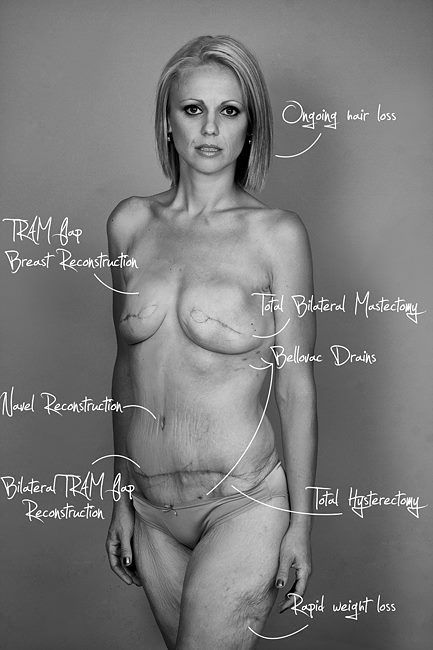 This is what cancer looks like ~~ such a brave woman to let the world see what it has done to her ~ http://www.huffingtonpost.co.uk/rebecca-sparrow-/mastectomy-pictures_b_4781776.html?ncid=edlinkusaolp00000009