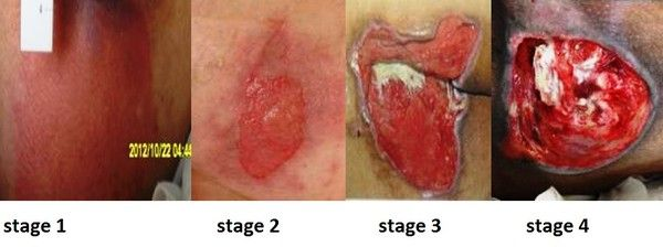 stage 2 pressure ulcer - Google Search