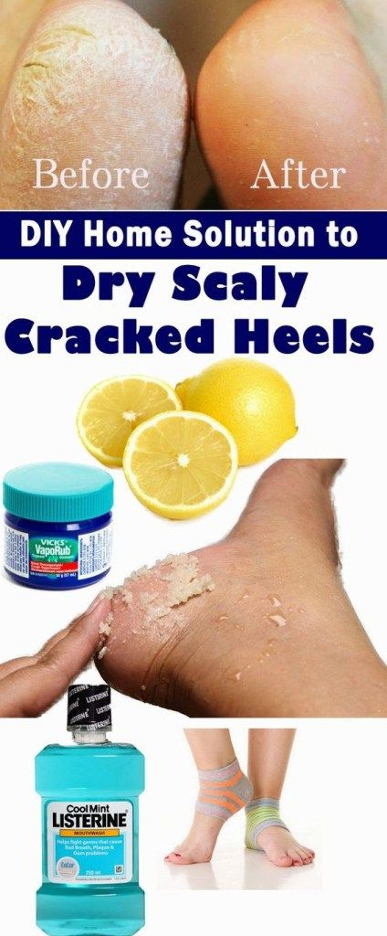DIY Home Solution to Dry Scaly Cracked Heels