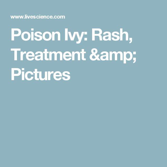 Poison Ivy: Rash, Treatment & Pictures