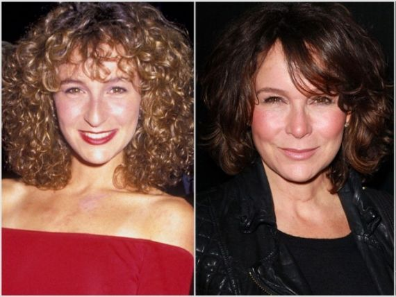 Jennifer Grey Plastic Surgery Before and After Photos Nose Job (Rhinoplasty) Removes Bump from Nose, Biggest Mistake!