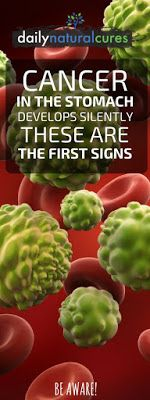 Cancer In The Stomach Develops Silently. These Are The First Signs! It Is Important That You Be Attentive!