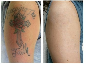 63 best tattoo removal before and after images on pinterest for Tattoo removal maryland