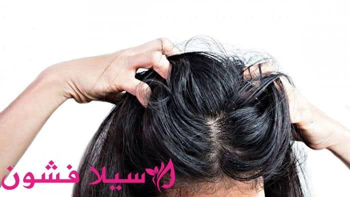 الحل السريع للقضاء على قشرة الشعر سيلا فشون Fashion
